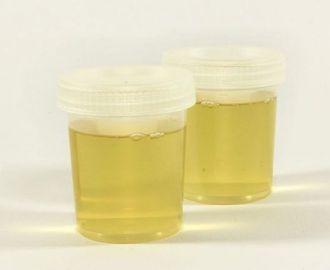 Что означает повышение оксалатов в моче, как их снизить?