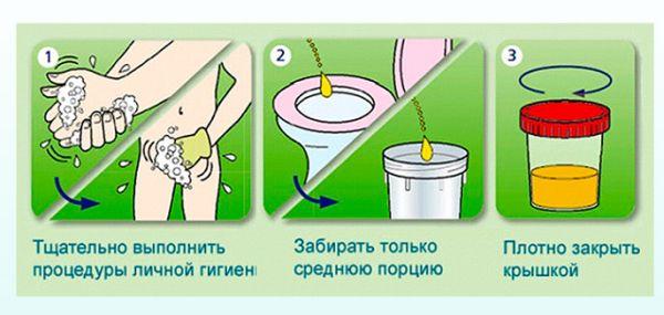 Норма белка в моче при беременности
