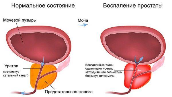 Простатит моча с кровью у мужчин чем лечить простатит в 18 лет