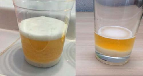 Сода и моча тест на беременность отзывы