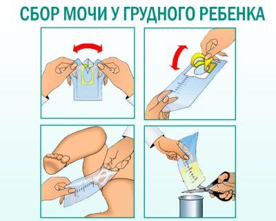 как снять мочеприемник