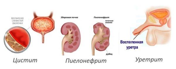 воспаления мочеполовой системы у женщин