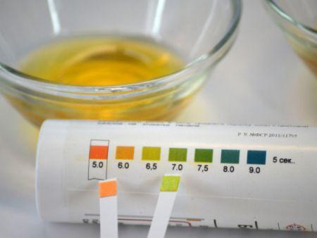 методики определения кислотности мочи