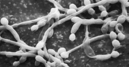 как действует крем Пимафуцин