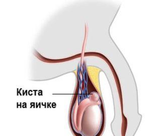 Почему у мужчин появляется киста яичка, как ее лечить, какие могут быть последствия?