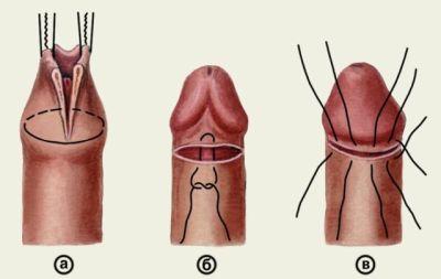 Фимоз у взрослых мужчин 7
