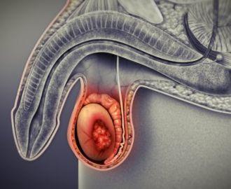 Почему возникает у мужчин воспаление яичка, симптомы, способы лечения