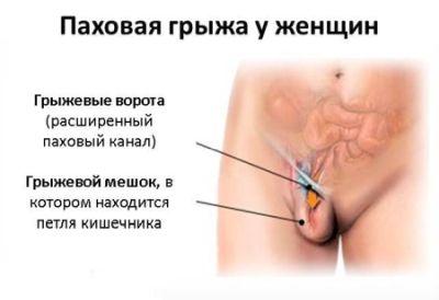 Шишка в области паха у женщин слева 24