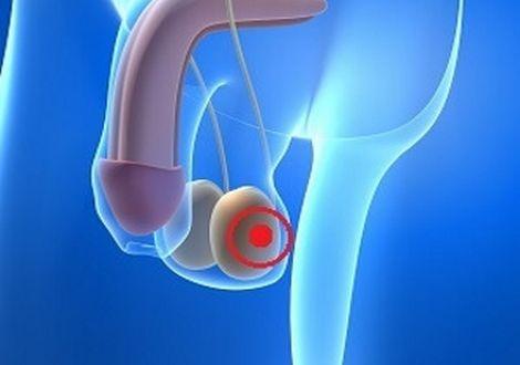 Какие признаки у мужчин при раке яичка, к кому обратиться при первых симптомах?