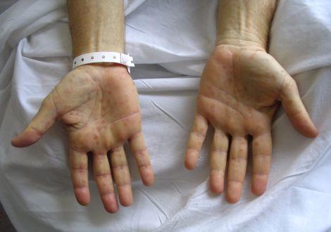 Как может выглядеть сифилис на различных стадиях заболевания?