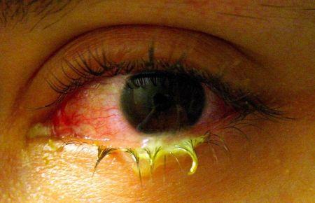 симптомы гонорейного конъюнктивита
