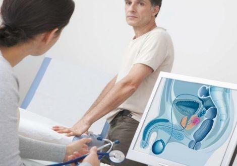 Как проявляется хламидиоз у мужчин, какое лечение быстрое и эффективное?
