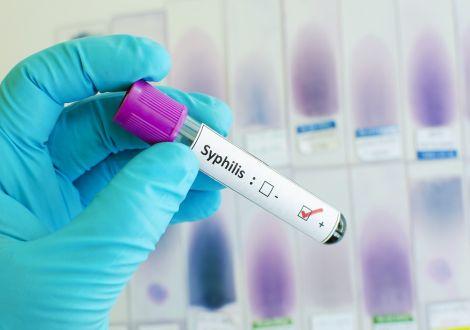Когда нужно проводить анализ на сифилис RPR (РПР), расшифровка результатов?