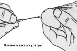 мазок на ЦМВ из уретры