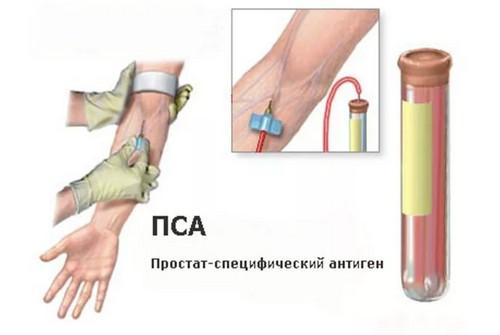 анализ крови на ПСА общий
