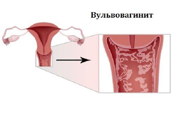 diagnoz-atrofiya-slizistoy-vlagalisha-lechenie