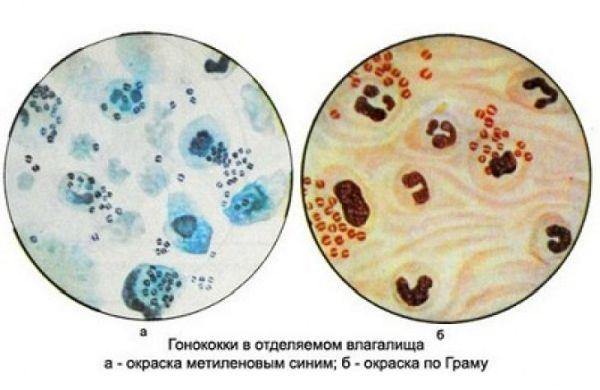 mikroskopicheskoe-issledovanie-otdelyaemogo-vlagalisha