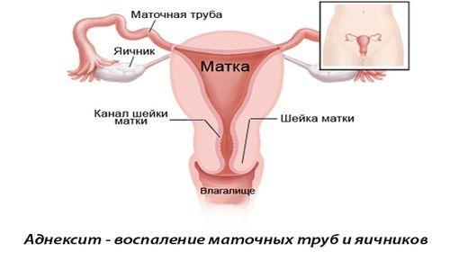 Лечение матки в домашних условиях 148