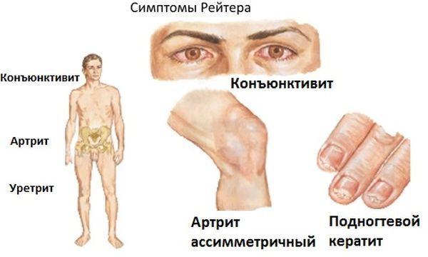 Хламидиоз и травмы сустава взаимосвязь хламидиоз вызывает реактивный артрит: боли в суставах, костях