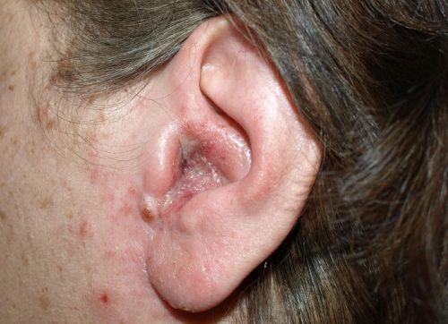 Грибок уха у беременных 40