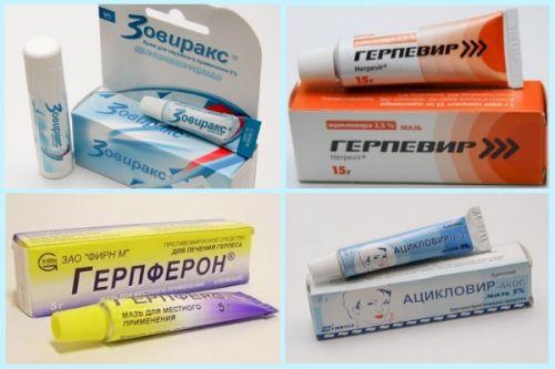 Лечение герпеса - как и чем быстро вылечить герпесвирус?