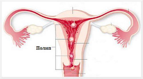 Плацентарный полип у беременных 70